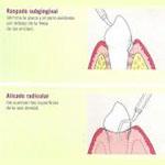 periodoncia-min-1