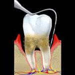 periodoncia-min-2